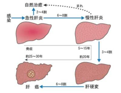 C型肝硬変